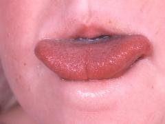 TongueTiePhoto02.jpg